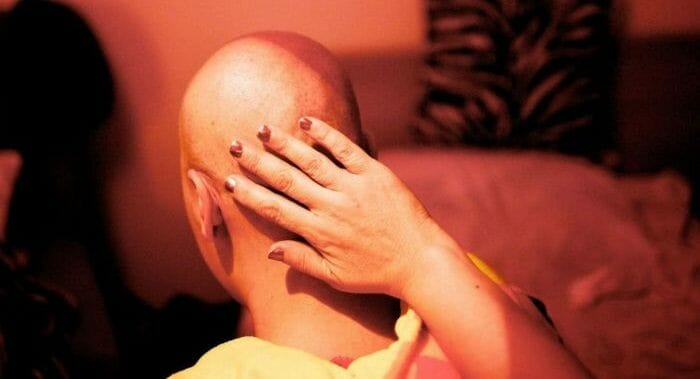 Chemo patient losing her hair