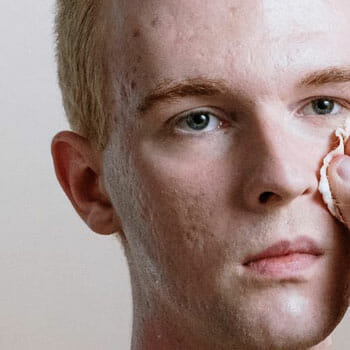 man cleaning up his acne