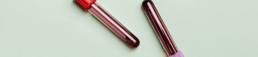 two vials of human blood