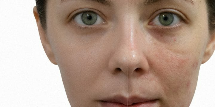 Same face with and without acne