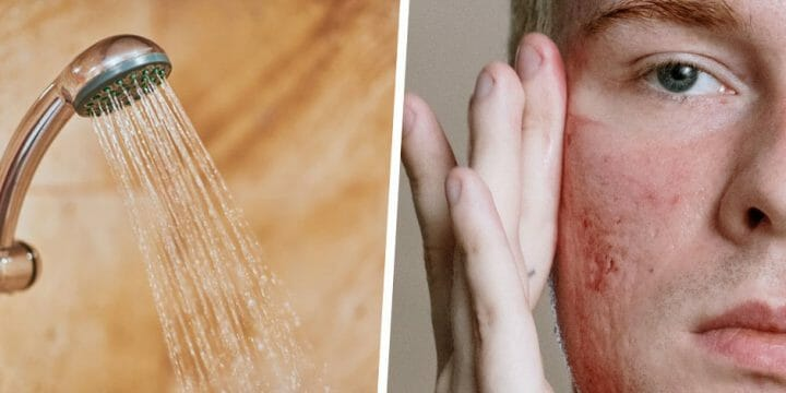 your guide to acne and cold showers