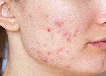 A person with an acne