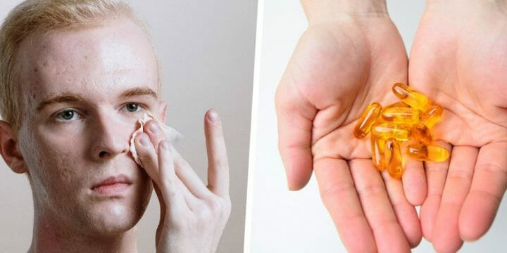 Your guide to fish oil and acne
