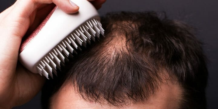 your guide to hair loss and testosterone boosters