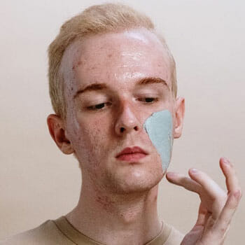 white putting cream on his acne face