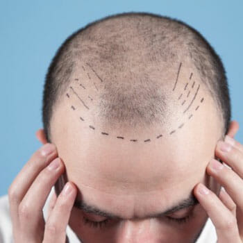 man with lines drawn on his receding hairline