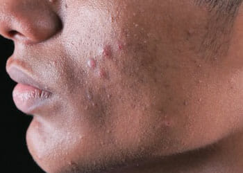 close up image of a man's cheeks with acne