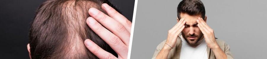man touching his head with hair loss, man experiencing a headache