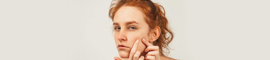 woman pointing out her face acne